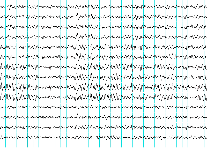EEG-Bild